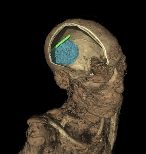 The CT scan of the skull of the mummy of an adult man (name unknown). The scan shows the remains of the brain (coloured in blue) and evidence of a tool that was left in the skull as a mistake during the mummification process (in green).