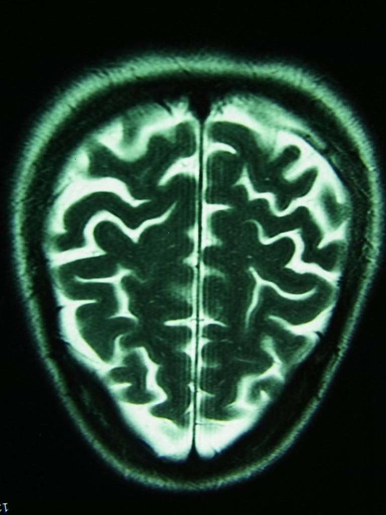 Actual Brain Scan of author Anna Tambour