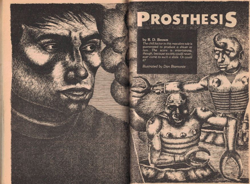 11 79 Prosthesis